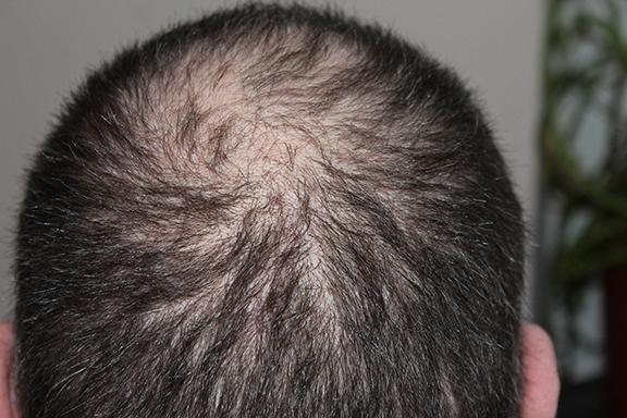 hair-248049